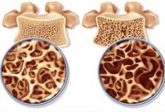Bambini con Osteogenesi Imperfetta trattati in grembo con le staminali.