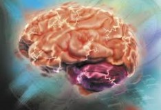 Staminali: Concrete speranze per i bambini affetti da paralisi cerebrale.