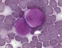 Ricercatori del cancro scoprono le cellule staminali pre-leucemiche!