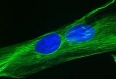 Staminali: Nuovo metodo per trasformargli in cellule muscolari!