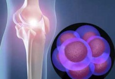 Staminali: Riparare il tessuto cartilagineo danneggiato.