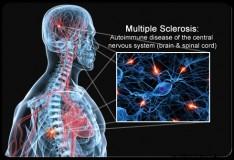 Staminali: Scoperto per sbaglio un possibile trattamento per la sclerosi multipla!
