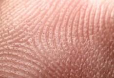 Cellule staminali embrionali umane da cellule adulte della pelle.