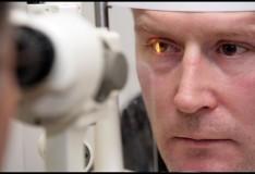 Trapianto di staminali per combattere la cecità