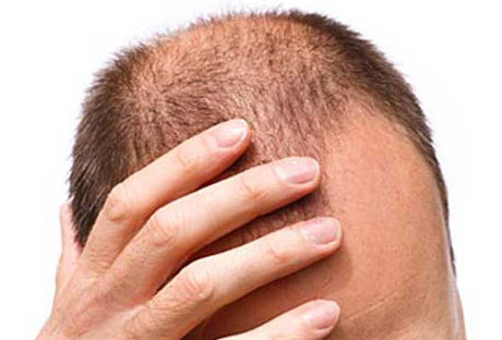 Staminali, un nuovo aiuto contro la perdita dei capelli