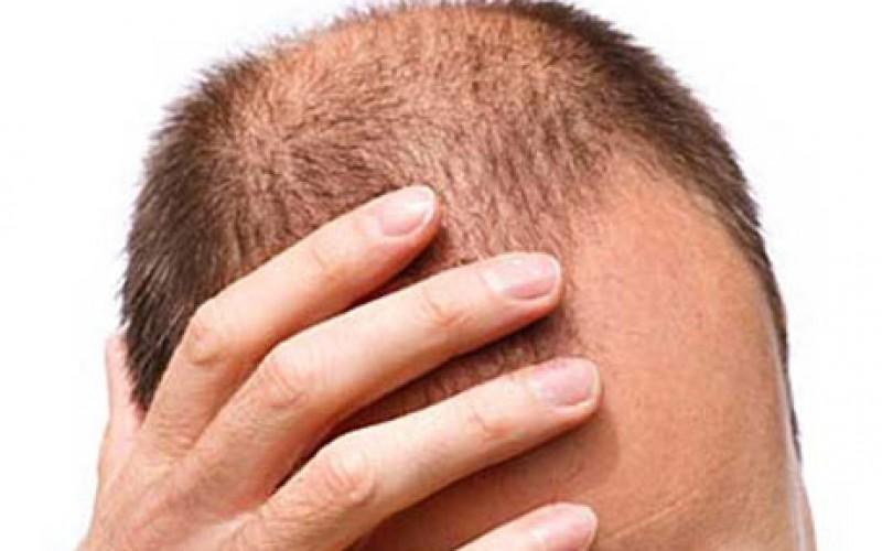 Le cellule staminali fanno crescere i capelli
